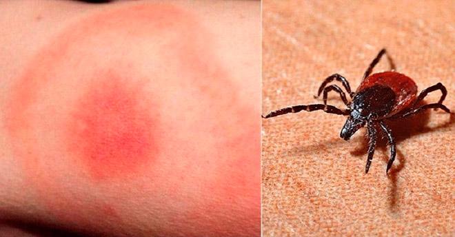 Реакция на укус насекомого