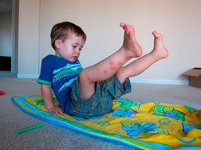 Обработка и лечение укусов клопов у детей
