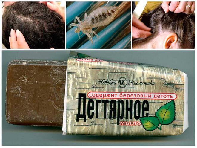 Способы применения дегтярного мыла от вшей и гнид