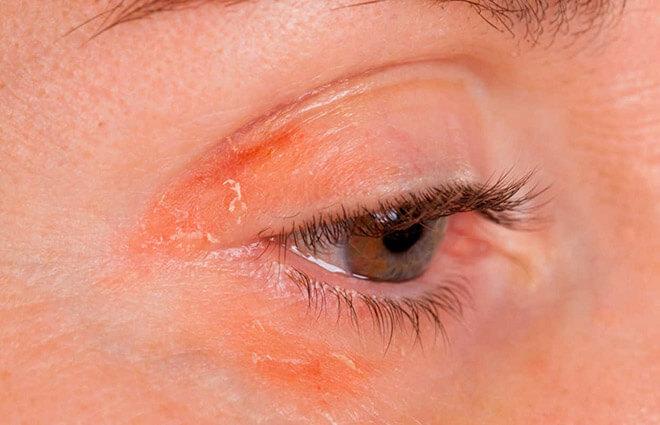 Лечение ресниц при демодекозе, аллергии и других заболеваниях