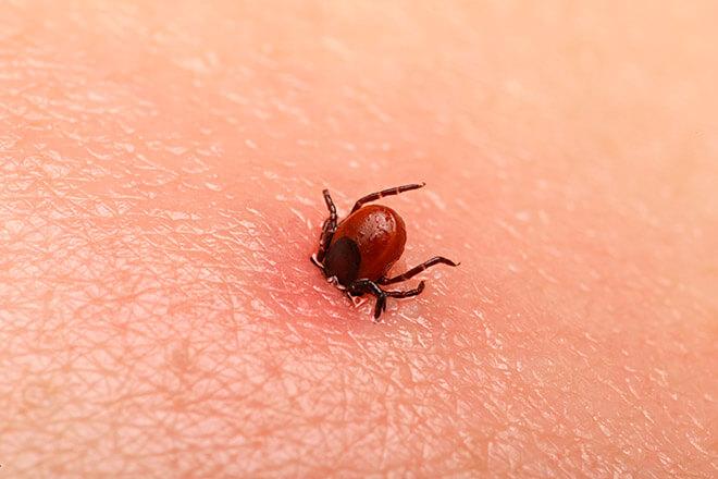 Симптомы и признаки укуса клеща